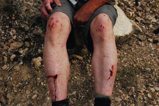 Bergsteigen, Absturz, Gefahren beim Klettern