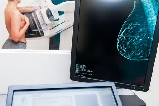 Mammographie Gerät