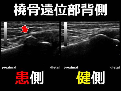 豊田市の接骨院 おおつか接骨院 橈骨遠位端骨折疑い 超音波画像