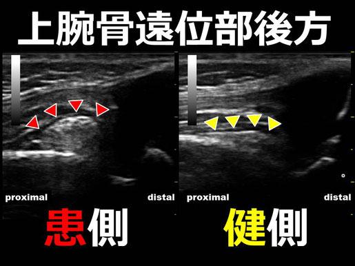 豊田市の接骨院 おおつか接骨院 上腕骨顆上骨折疑い 超音波画像