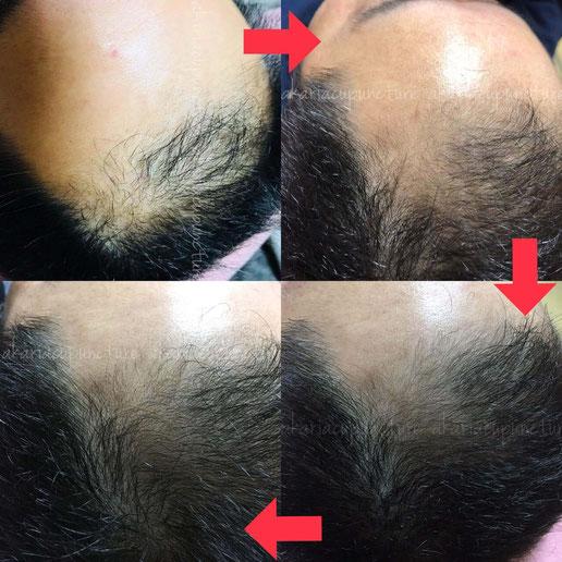 育毛 増毛 薄毛 はげ ハゲ治療 鍼灸治療