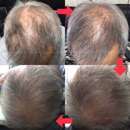 育毛 増毛 薄毛 ハゲ治療 鍼灸治療