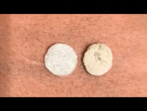 Hautabtragung Vor und nach dem Filterwechsel