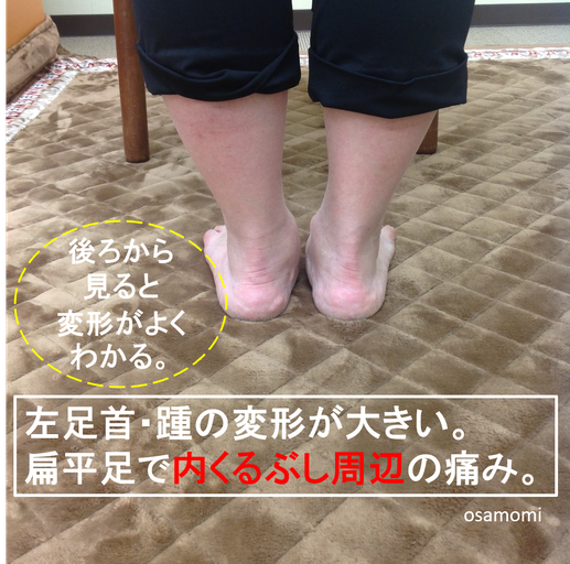足首痛 後脛骨筋腱 扁平足 オサモミ整体院 昭島