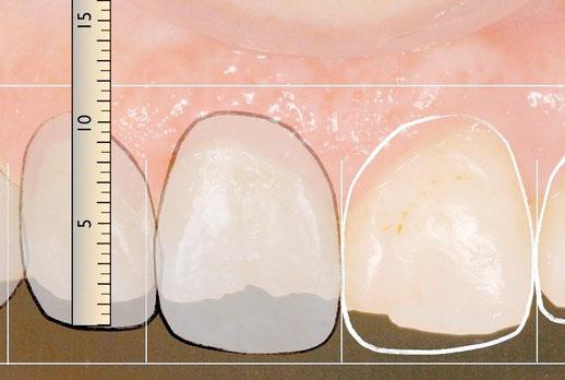 casos clinicos, resultados, pacientes, clínica dental integral bruno negri, bruno dentista, pilar de la horadada, calidad, implantes, dentista, dolor muela, empaste, bruno negri, odontologo, doctor, dr. bruno negri, periodoncia, cirugia oral, cirugia,
