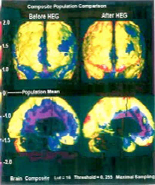 SPECT-Bilder der cerebralen Durchblutung einer 67-jährigen Patientin mit Gedächtnisverlust, Angst und Depressionen, vor und nach 23 HEG-Behandlungen: deutliche Verbesserung in den Frontal- und Temporallappen (weniger blaue, dafür mehr rote Bereiche)