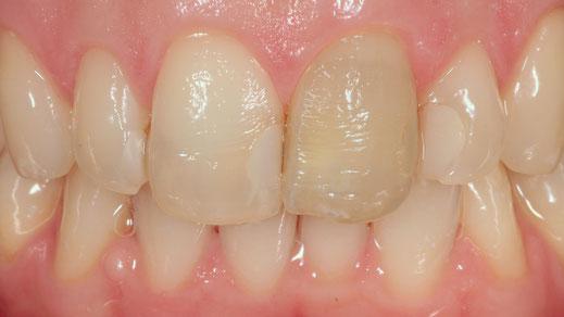 verfärbte Zähne und große Zahnfüllungen
