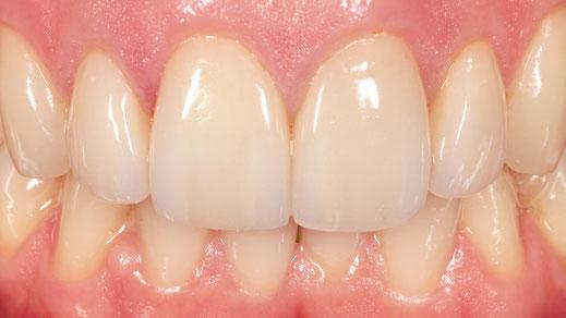 verfärbte Zähne mit Veneers versorgt. www.mb-dental.de