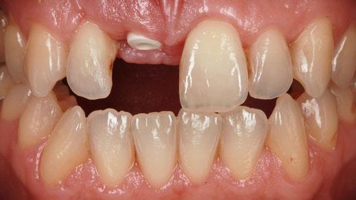 Zahnlücke der Schneidezähne / Bild Markus Bongartz