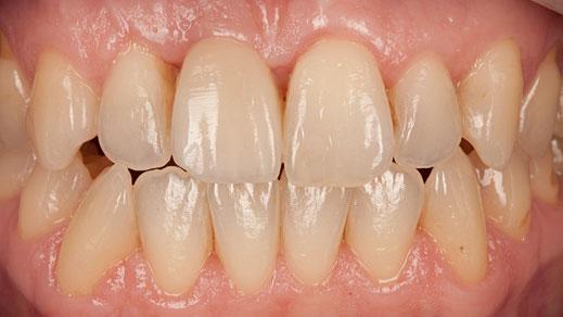 Zahnlücke geschlossen mit Implantat / Bild Markus Bongartz