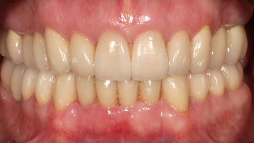 ästhetische Versorgung mit Vollkeramikkronen. www.mb-dental.de