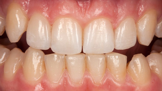 Zahnlücken mit Veneers geschlossen / Bild Markus Bongartz