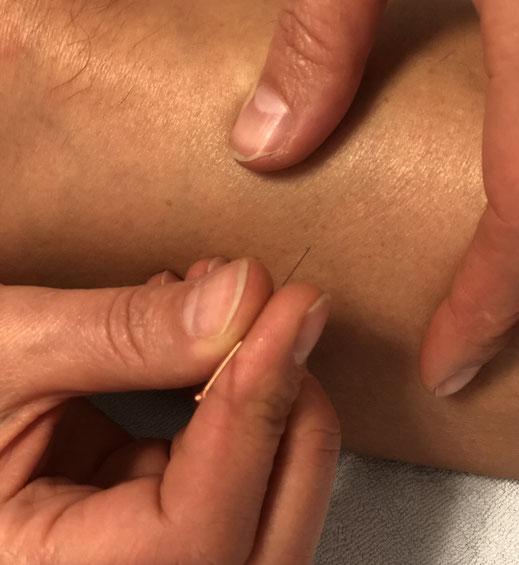 """TCM in Düsseldorf: Das """"Nadeln"""" bei der Akupunktur ist schmerzfrei und führt bestenfalls zu einem Kribbeln"""