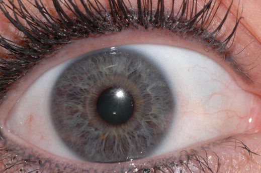 Iridology can help assess the state of the internal organs and the overall constitution of the body.