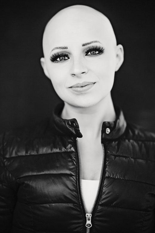 alopecia france