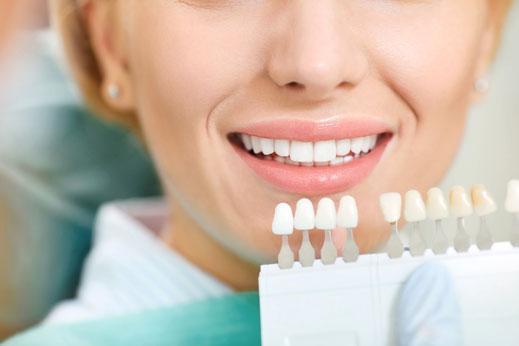 Bleaching, Farbnahme, Aufhellung der Zähne