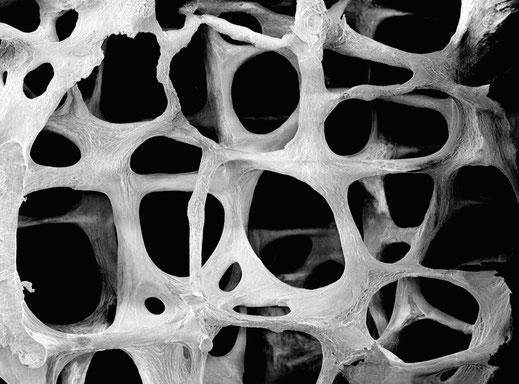 Elektronenmikroskopische Aufnahme eines Knochens einer 75-jährigen Frau mit hochgradiger Osteoporse | Bildquelle: muschitz.info