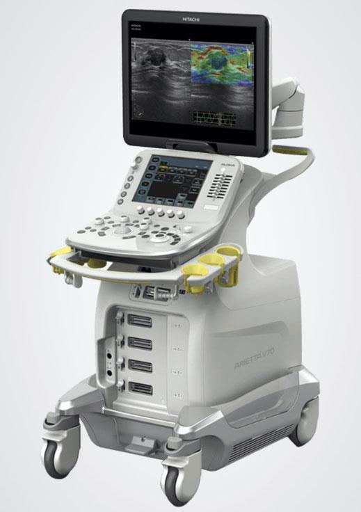 Hochmoderner Ultraschall für moderne Vorsorge