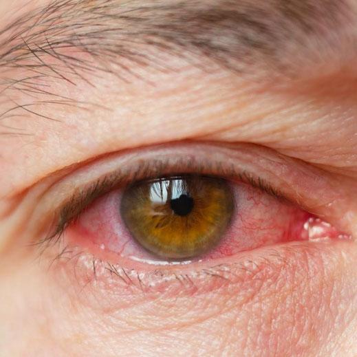rotes und entzündetes stark trockenes Auge
