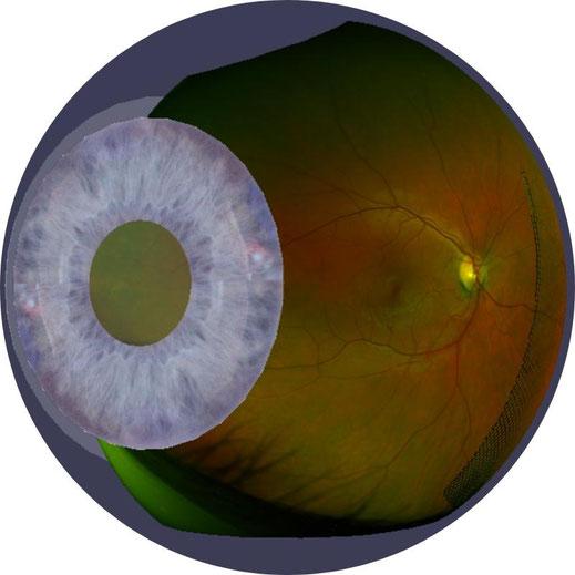 Ultraweitwinkel-optomap-Bildgebung des hinteren Augenabschnitts