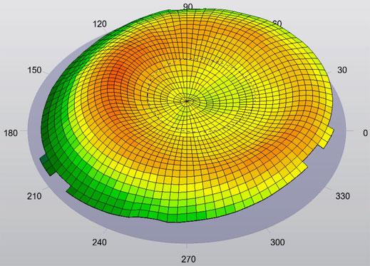 Hornhautoberfläche nach der Anwendung der Nachtlinsen & Ortho-K in Spremberg