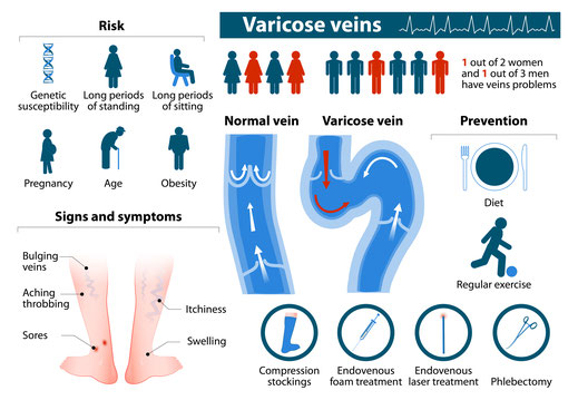 Are you at risk for varicose veins? Bulging veins, aching thrombing, sores, swelling, itchiness? 1 out of 2 women and 1 out of 3 men have vein problems.