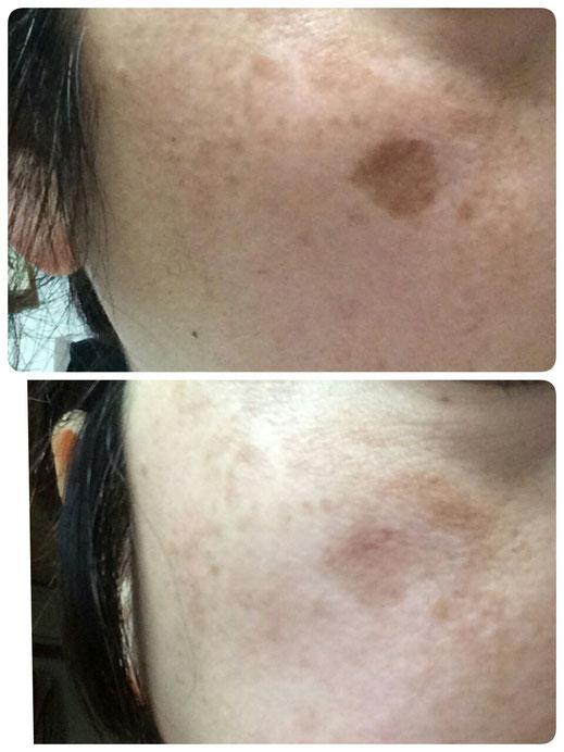 Drピュールボーテ化粧品 改善過程