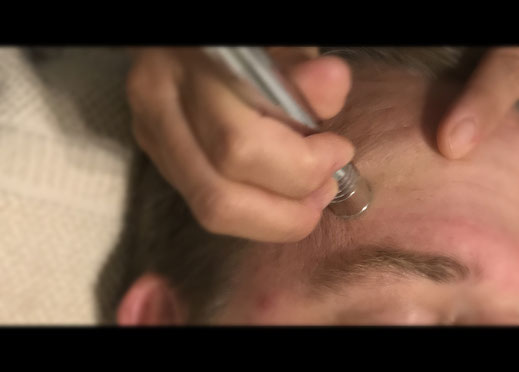 Diamant-Microdermabrasion