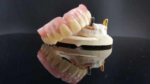 Implantat bei zahnlosem Kiefer