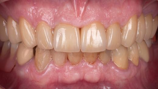 Zahnkronen bei stark abgenutzten Zähnen / Bild Markus Bongartz