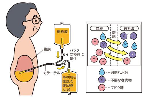 腹膜透析のしくみ