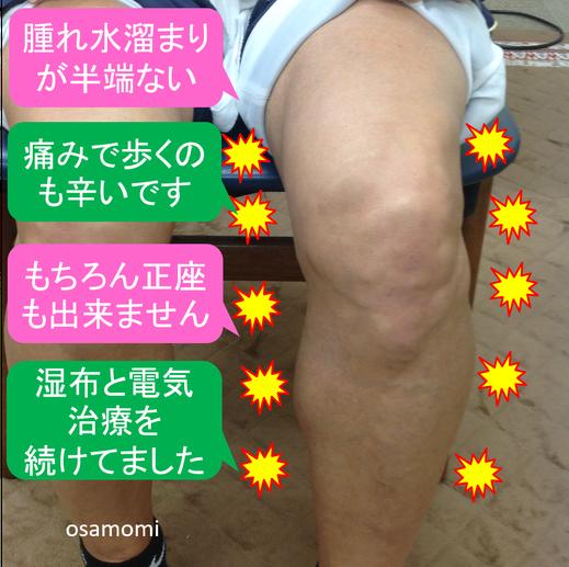昭島市のオサモミ整体院。膝痛・変形性膝関節症の改善ケア 拝島駅から無料送迎サービス。