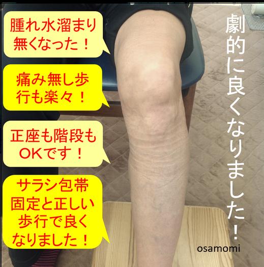 昭島市のオサモミ整体院。変形性膝関節症 膝痛 サラシ包帯固定 拝島駅から無料送迎サービス。