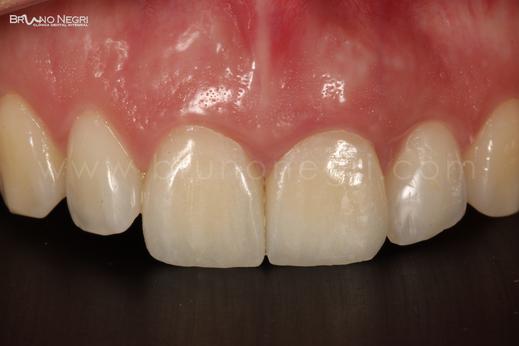 traumatismo en la boca, golpe en las paletas, diente roto, se me ha roto una paleta, implantes en centrales, cirugia de calidad, resultados increibles, bruno negri, dentista pilar de la horadada, dentista de calidad alicante, dentista bueno en murcia