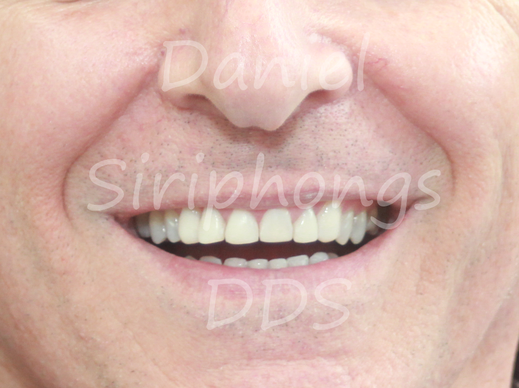 composite veneers after whitening
