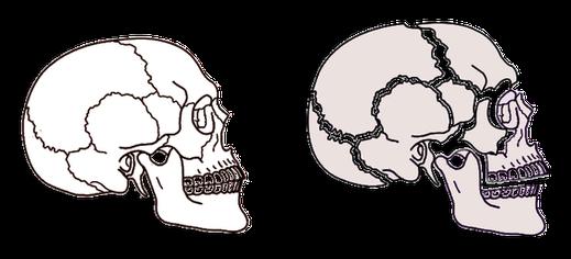 正常な頭蓋骨 と 歪んだ頭蓋骨 顔が大きい 顔が歪んでる
