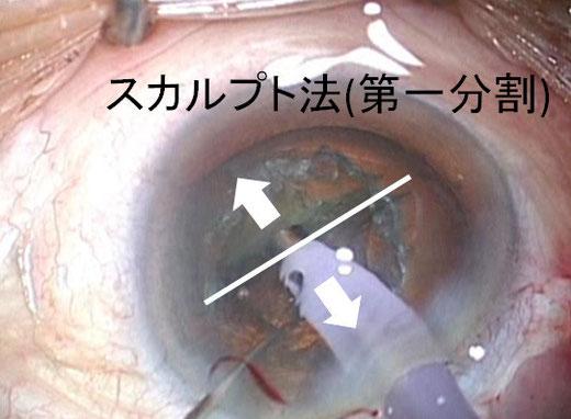 尼崎 眼科 緑内障 日帰り白内障手術 分割法 スカルプト法