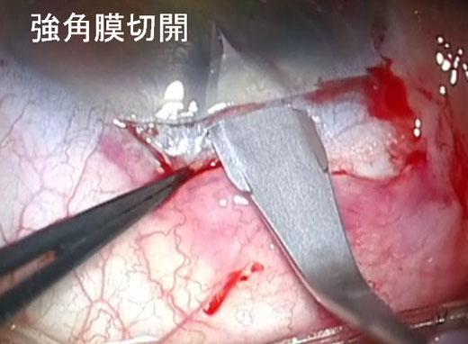 尼崎 眼科 緑内障 日帰り白内障手術 強角膜切開