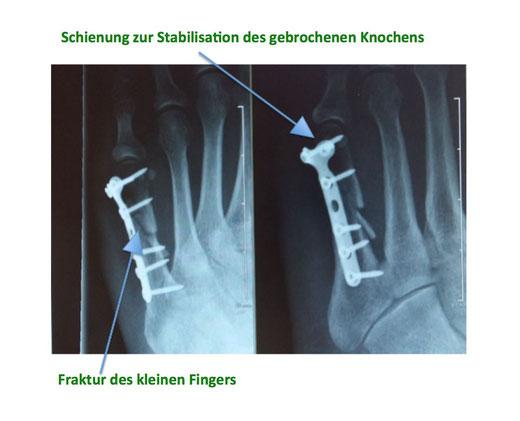 Röntgen Finger Schiene