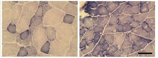 NADH染色 NADH-TR staining
