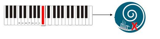 La cochlée abîmée comparée à un clavier de piano