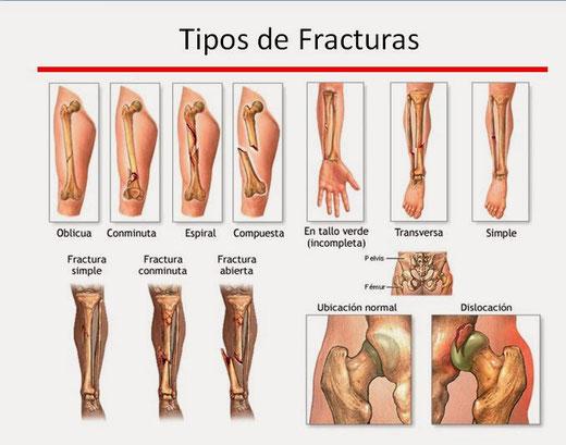 Tipos de fracturas.