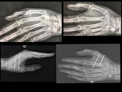 Dr Rémi, chirurgie orthopédique du sport, Toulouse, fracture articulaire base 1er métacarpien