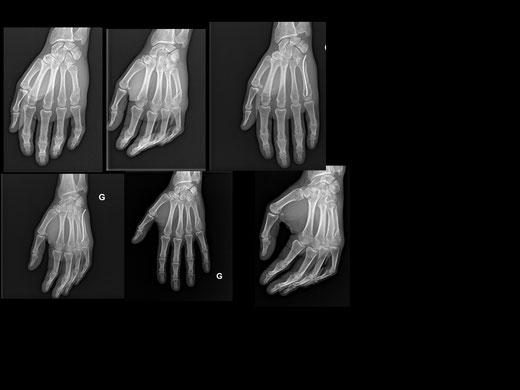 Fracture 5ème métacarpien main, brrochage Foucher, chirurgie orthopédique du sport, Dr Rémi, Toulouse