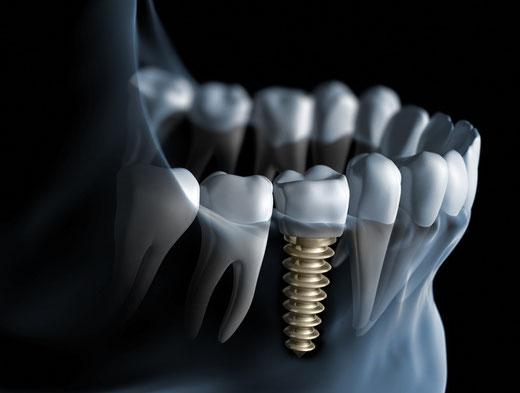 Centro di Eccellenza in implantologia
