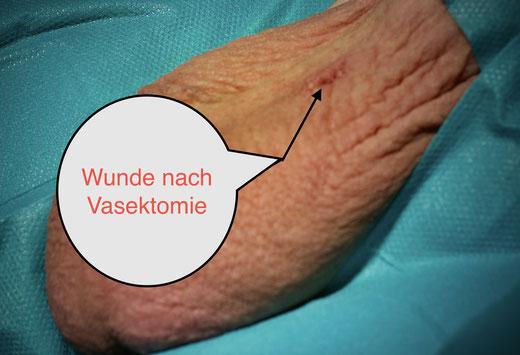 Sterilisation des Mannes, Vasketomie in No Skalpell Technik, keine Schmerzen nach Vasektomie.