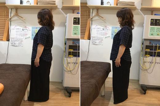 横からの姿です。  かなり背中が丸くなっており筋肉にストレスがかかっています。  施術後は背筋が伸びバストアップもしています。     姿勢が良くなると痛みや不調も改善され,見た目も美しくなります。の画像