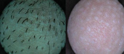 behandlungsablauf dauerhafte haarentfernung - skinplace