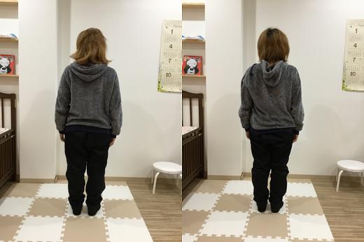 左肩が上がり全体的に右に倒れそうな姿勢です。  筋緊張により首、肩、腰にストレスがかかった状態です。  1度の調整でだいぶ良くなりました。の画像