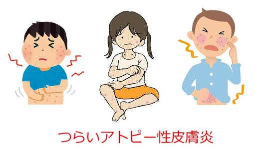 アトピー性皮膚炎の体質改善整体院:東京渋谷・横浜・船橋・大宮・名古屋・札幌